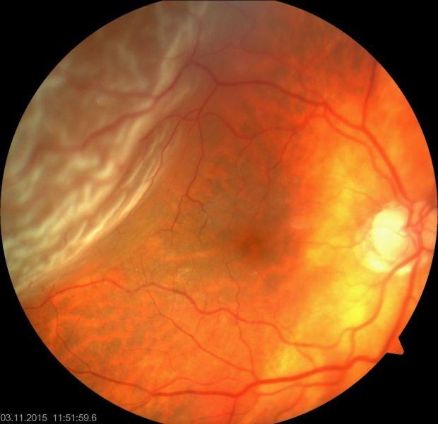 ablatio retinae emberek, akik korrigálták a látásukat